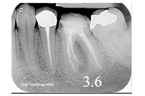 Esami radiologici in Odontoiatria