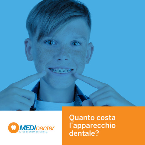Quanto costa l'apparecchio per i denti?