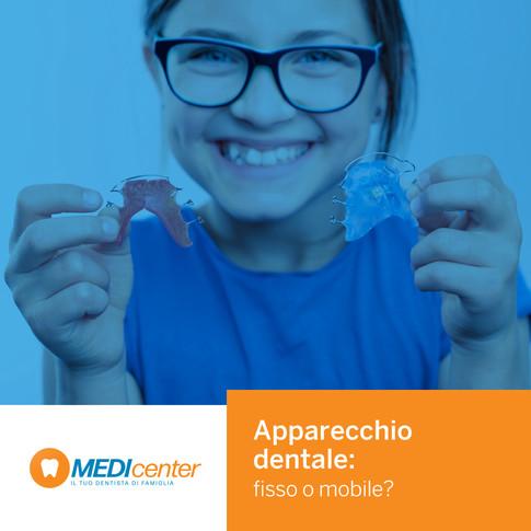 Apparecchio dentale: fisso o mobile? Ecco le principali tipologie.