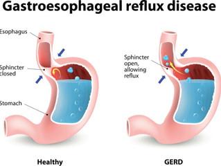 GERD: Gastroesophageal Reflux Disease