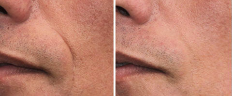dermatude-facelift-cheek-tampa