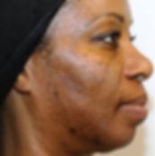 vipeel-acne-removal-long-island-b03.jpg