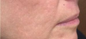microneedling-acne-wrinkles-stretchmarks