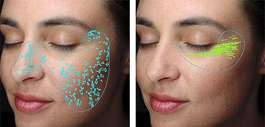 VISIA Skin Analysis Tampa