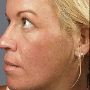 chemical-peel-after-tampa