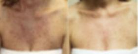 vipeel-age-sun-spots-nassau-long-island-