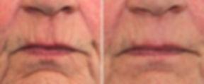 dermatude-facelift-mouth-nassau-long-isl