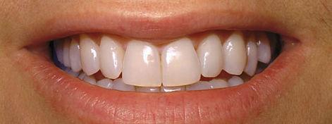 teeth-whitening-spas-a-tampa