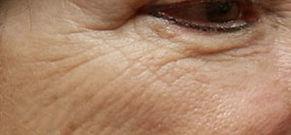 microneedling-wrinkles-before-tampa