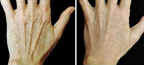 radiesse hand fillers rejuvenation long island