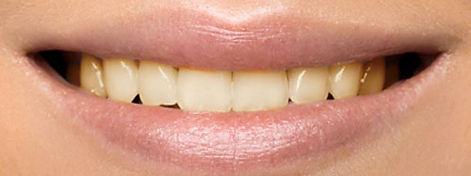 teeth-whitening-before-tampa