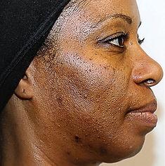 Vi Peels Acne Dark Skin Before CaviSpa Tampa