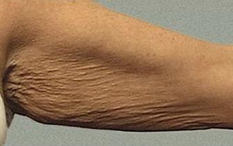 Skin Tightening Arms Before Tampa