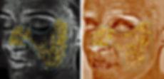 VISIA-skin-analysis2-nassau-long-island.