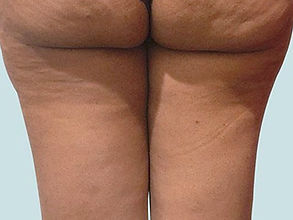 Cellulite Removal Before Tampa