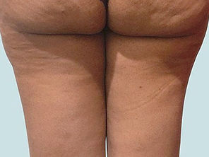 cellulite-removal-nassau-long-island-b02
