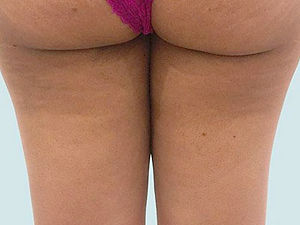Cellulite Removal After Tampa