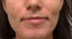 skin-rejuv-wrinkles-pigmentation-long-is