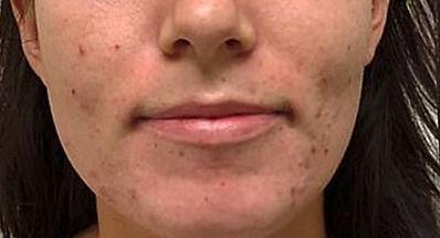 Skin Rejuvenation Before Tampa