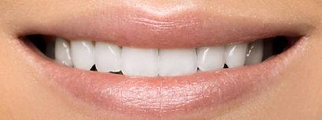 teeth-whitening-spas-neassau-long-island