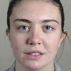 Vi Peels Acne Fair Skin After CaviSpa Tampa