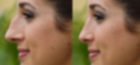 nose-filler-rhinoplasty-juviderm-restyla