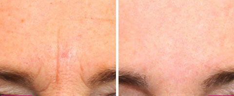 dermatude-facelift-brow-tampa