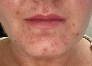 microneedling-acne-before-tampa