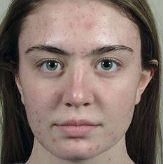 Vi Peels Acne Fair Skin Before CaviSpa Tampa
