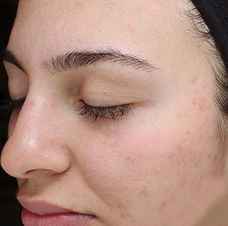 light-therapy-acne-a-tampa