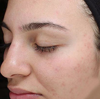 light-therapy-acne-wrinkles-long-island-