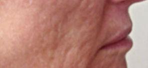 microneedling-acne-scarring-b-tampa