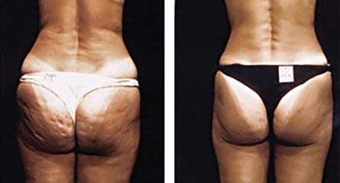 Fat Cellulite CaviSpa Tampa