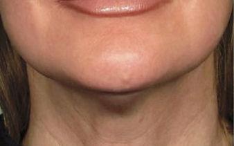 skin-tightening-neck-long-island-a04.jpg