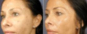 vipeel-facial-acne-nassau-long-island-02