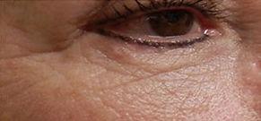 microneedling-wrinkles-after-tampa