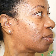 Vi Peels Acne Dark Skin After CaviSpa Tampa