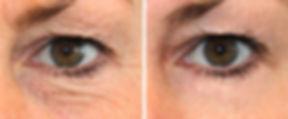 dermatude-facelift-eyes-nassau-long-isla