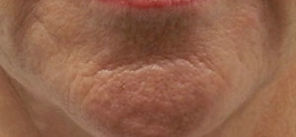 microneedling-stretchmarks-b-tampa