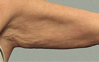Skin Tightening Arms After Tampa