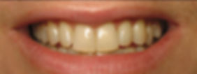 teeth-whitening-spas-neassau-long-island