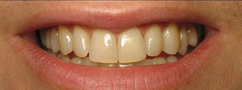 teeth-whitening-spas-b-tampa