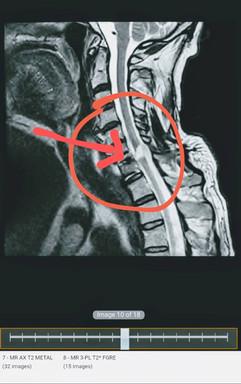 Broken neck MRI - with arrow.jpg