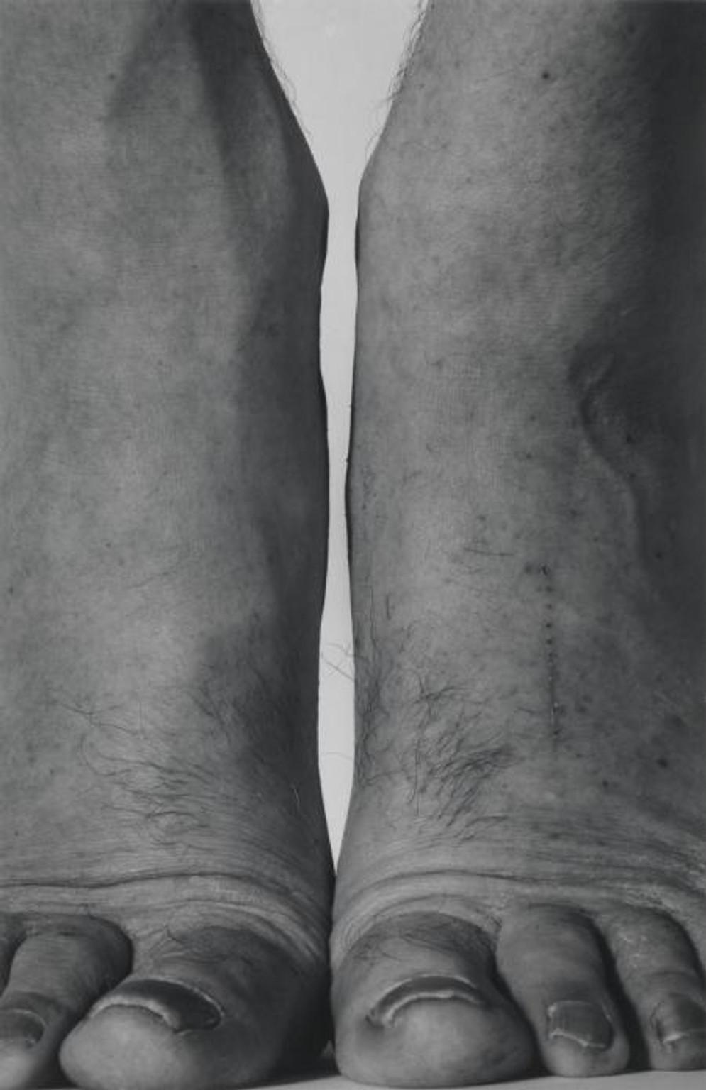 Self-Portrait (Feet Frontal) 1984 by John Coplans 1920-2003