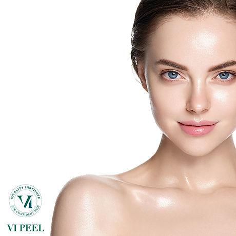 VIPeel1.jpg