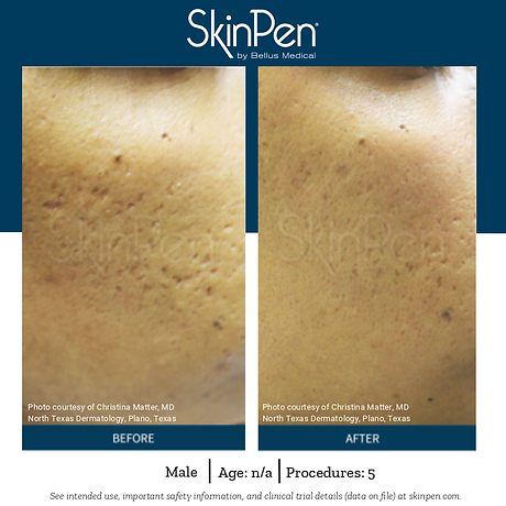 SkinPen - Before and After.png