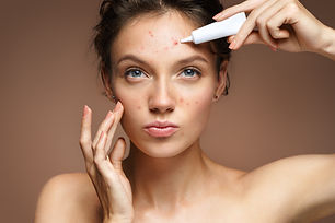 acne image.jpg