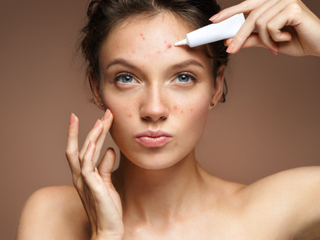 Best Acne Treatments To Help Get Rid Of It For Good