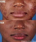 f5 acne.jpeg