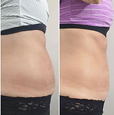 stomach before and after.jpg
